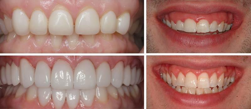 Gum Lift Procedure