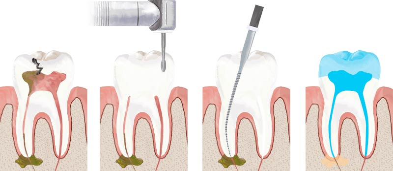 Root Canal Tooth Procedure