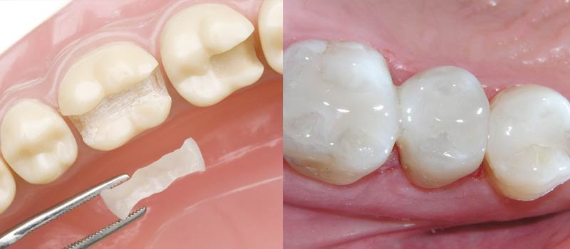 tooth-filling-800x350